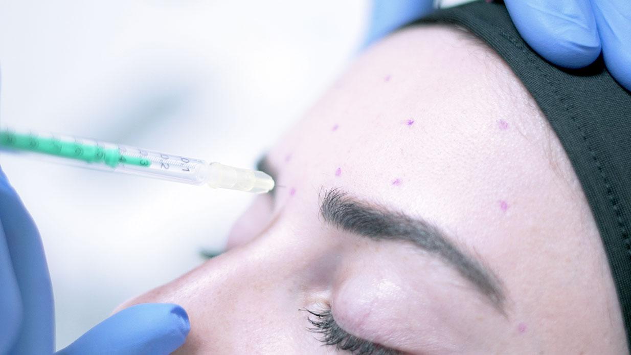 Botoks Alın Uygulaması - Dr. Ahmet Karaçam